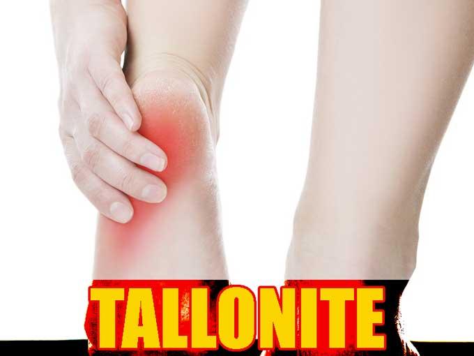 Tallonite