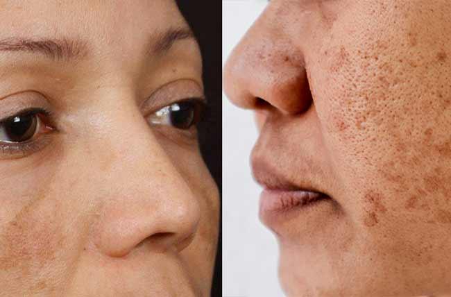 Pigmentazione della pelle
